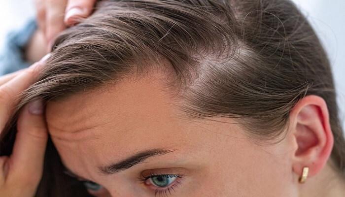 Kadınlarda Saç Dökülmesinin 10 Sebebi - 2